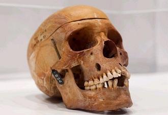 Crâne d'un namibien.